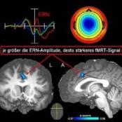 EEG (Max Planck Institut)