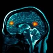 Gehirnscan; Bild: BBC
