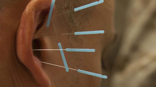 Akkupunkturnadeln im menschliche Ohr.
